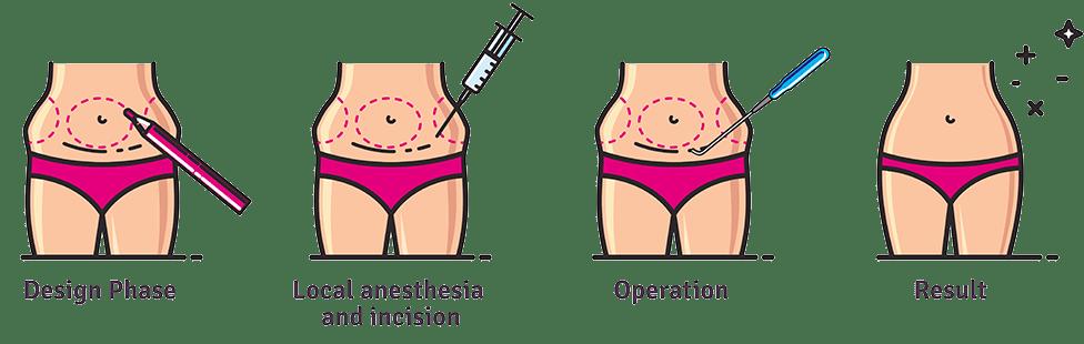 plus size liposuction procedure infographic